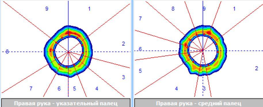 http://s9.uploads.ru/jwWVN.jpg