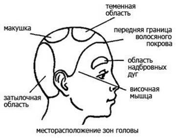 http://s9.uploads.ru/t/A216V.jpg