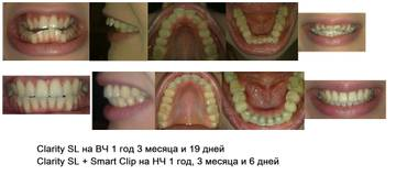 http://s9.uploads.ru/t/fOSDa.jpg