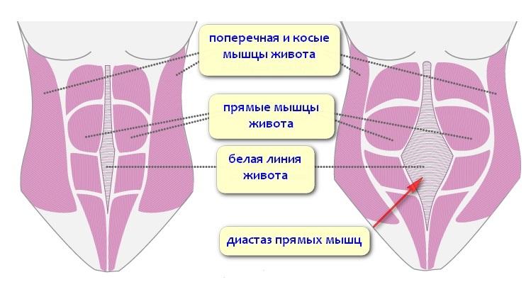 http://s9.uploads.ru/KUAxr.jpg